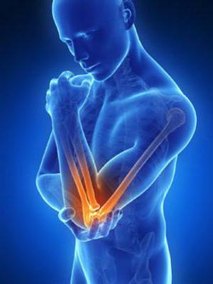 эпикондилит латеральный локтевого сустава симптомы