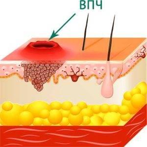 Поражение кожи ВПЧ