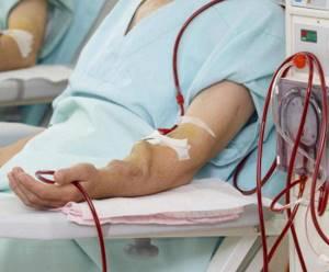 фистула для гемодиализа
