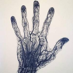 Кровеносные сосуды руки