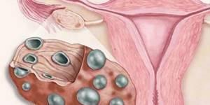 спкя в гинекологии