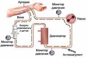 аппарат для диализа