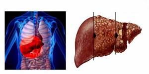 гепатиты инфекционные болезни