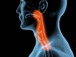 Симптомы ахалазии кардии