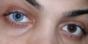 Голубые линзы на карих глазах