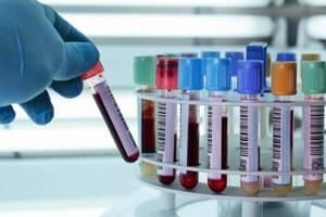 эдс анализ крови что это расшифровка
