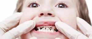 кариес болит зуб