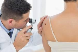 Осмотр у врача-дерматолога