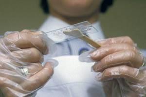 лептотрикс в мазке лечение