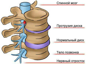 дорзальные протрузии межпозвонковых дисков