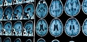 Мозг больного