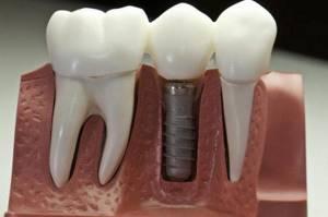 что лучше мост или имплант зубов отзывы