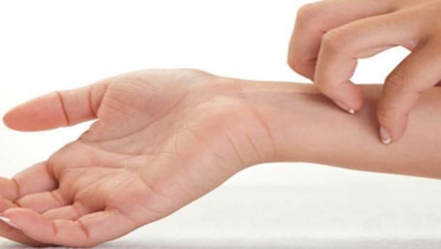 признаки аллергии на глютен
