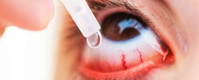 атропин глазные капли