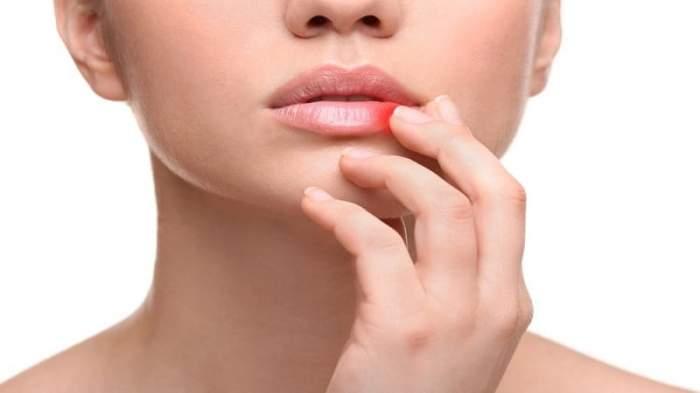Что делать при заедах на губах