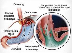 рефлюкс эзофагит симптомы и лечение