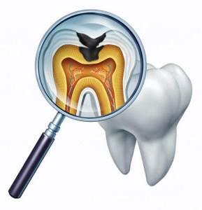 кариес молочного зуба у ребенка