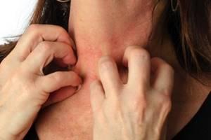 как проявляется аллергия на глютен