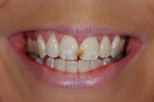 кариес на передних зубах