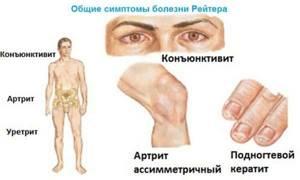 Все о реактивных артритах суставов