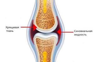 Гиалуроновая кислота при артрозе коленного сустава — Суставы