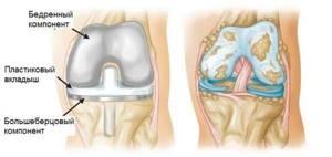 Эндопротезирование коленного сустава при гонартрозе - подробности о болезнях суставов на Diet4Health.ru